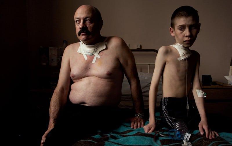 Enfermos de cáncer por el accidente nuclear de Chernóbil o Chiernobil - Tratados hoy en Bielorrusia