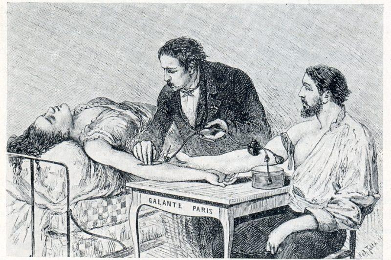 Transfusión de sangre de brazo a brazo