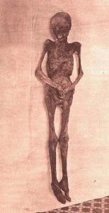 La famosa momia de la Facultad de Medicina, Carmen Tarín